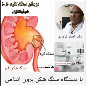 درمان سنگ کلیه ۱۰ میلیمتری